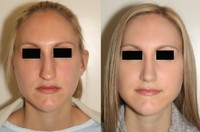 more images of Dr. Andrew B. Denton Facial Plastic Surgeon